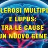 Sclerosi multipla e Lupus: tra le cause un nuovo gene