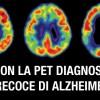 Con la PET diagnosi precoce di Alzheimer