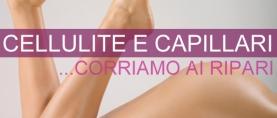 Cellulite e capillari: corriamo ai ripari