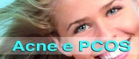 Acne e Sindrome dell'Ovaio Policistico (PCOS): quale legame ?