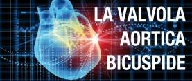 Valvola Aortica Bicuspide: di che si tratta?
