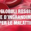 Globuli Rossi: lente d'ingrandimento per le malattie del sangue