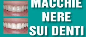Macchie nere sui denti: le Black Stain