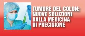 Tumore del colon: nuove cure dalla medicina di precisione