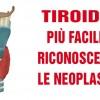 Tiroide, da oggi più facile riconoscere le neoplasie