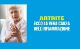 Artrite: scopriamo vera causa dell'infiammazione