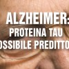 Alzheimer: Proteina Tau possibile predittore