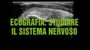 Ecografia: utilizzarla per vedere i nervi e guidare l'anestesista