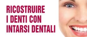 Intarsi dentali per ricostruire i denti