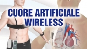 Cuore artificiale wireless: più qualità di vita per i trapiantati