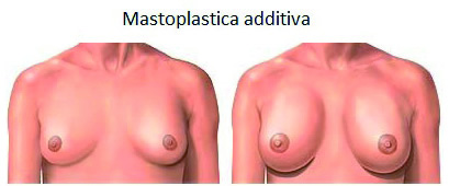 Chirurgia plastica seno mastoplastica additiva