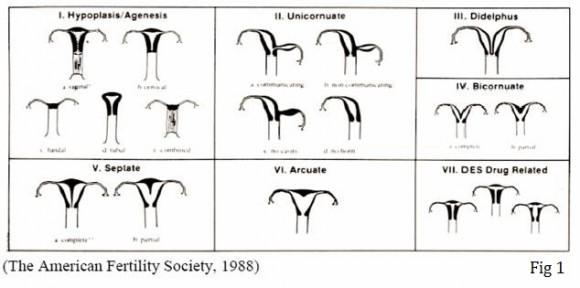malformazioni uterine utero arcuato utero setto