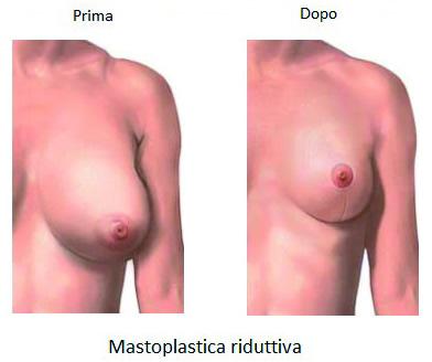 chirurgia plastica del seno mastoplastica riduttiva