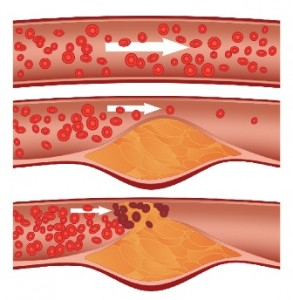 ischemia aterosclerosi