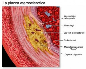 placca aterosclerosi ictus ischemia cerebrale