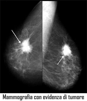 tumore della mammella tumore del seno