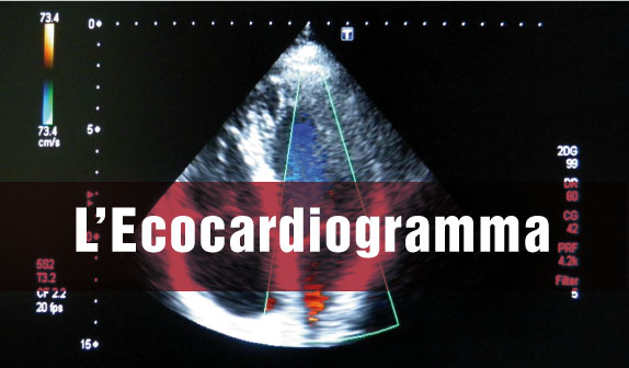 Ecocardiogramma colorDoppler: tutto quello che c'è da sapere