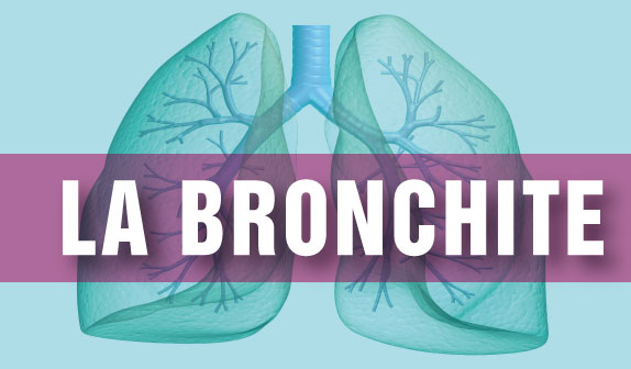 Bronchite acuta e cronica: cause, diagnosi e terapia
