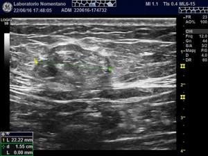 ernia inguinale ecografia inguinale ecografia canale inguinale
