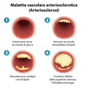 malattie delle arterie aterosclerosi