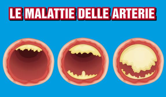 Le Malattie delle Arterie