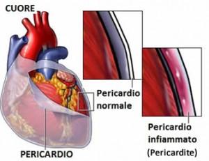 pericardio pericardite cuore