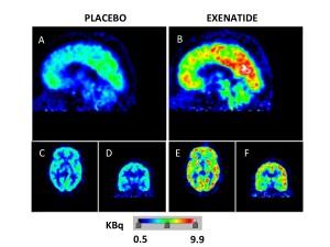 exenatide metabolismo cervello