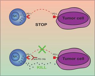 cellule natural killer tumori
