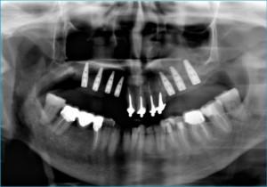 impianti dentali protesi dentali implantologia dentale edentulia ortopanoramica dentale