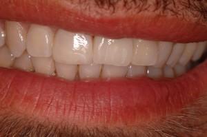 implantologia dentale protesi dentali impianti dentali edentulia