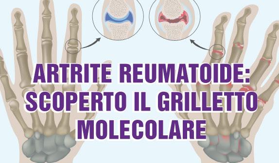 Artrite Reumatoide: scoperto il grilletto molecolare micro RNA155