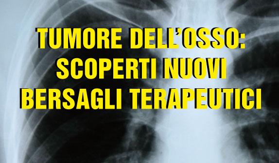 Tumore dell'osso: scoperti nuovi bersagli terapeutici