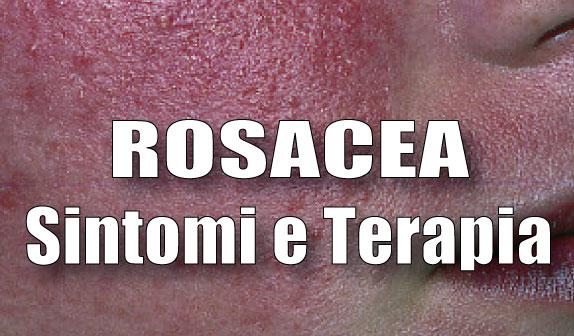 Rosacea: sintomi e terapia