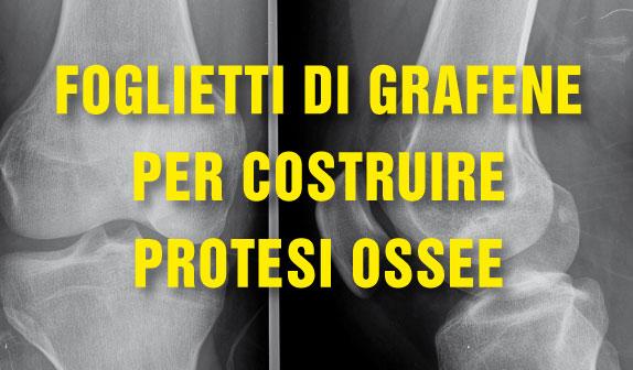 Foglietti di grafene per costruire protesi ossee