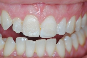 fascette dentali fascette estetiche veneers