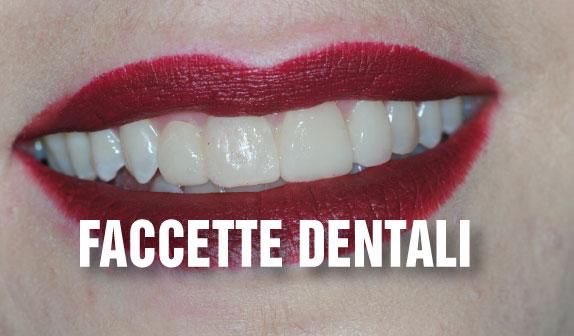 Faccette Dentali: denti belli salvando lo smalto