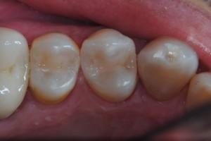intarsi dentali ricostruzione denti