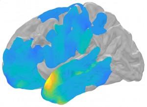 cervello gestione ricordi