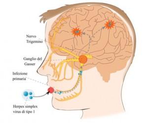 herpes alzheimer