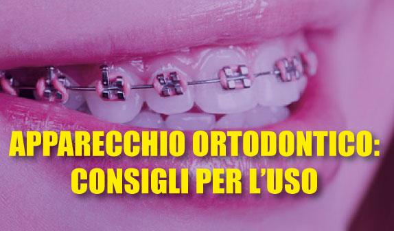 Apparecchio ortodontico: accorgimenti e consigli per l'uso